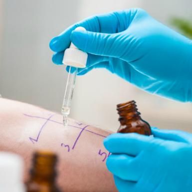 Alergias: ¿qué cubre el seguro de salud?